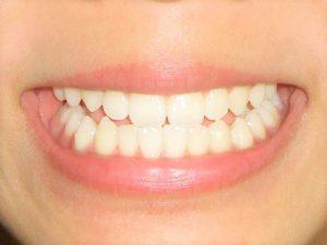 美容 ホワイトニング 歯
